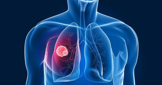Ölümlerin %25'ine kanser neden oluyor