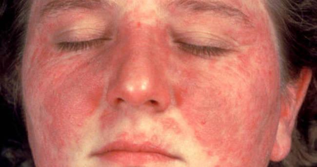 Lupus hastalığının belirtileri ve tedavisi