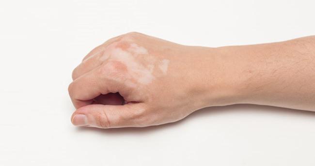 Vitiligo nasıl geçer?