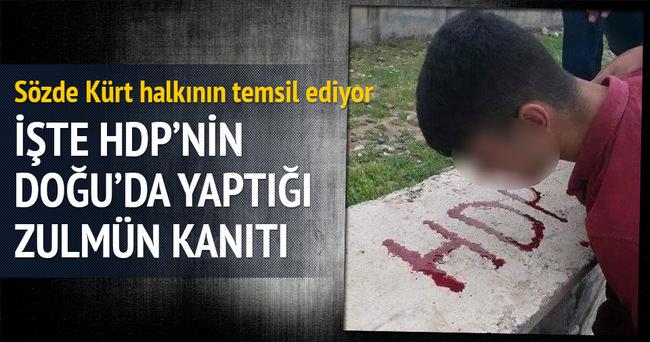 Dövdükleri çocuğun kanıyla HDP yazdırdılar!