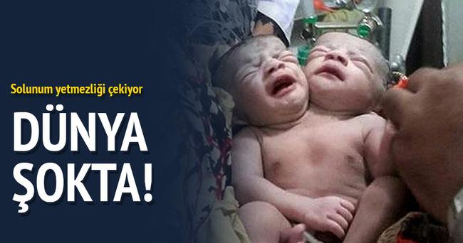 İki başlı bebek dünyayı şoke etti