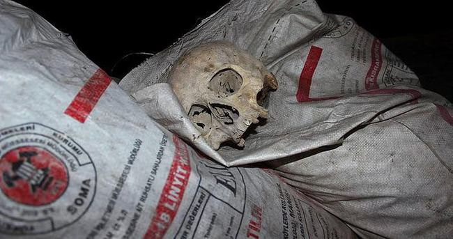 Çöp konteynırında kafatası bulundu!