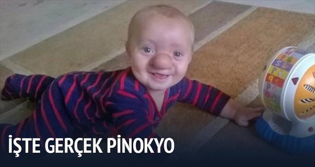 'Gerçek Pinokyo' 21 aylık Ollie
