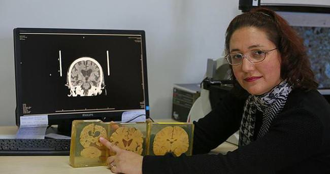Beynin sırlarını çözmek için organ bağışı bekleniyor