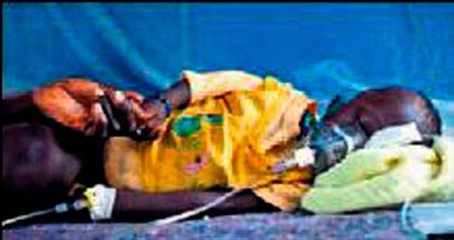Güney Sudan'da 1.6 milyon kişi sıtma!
