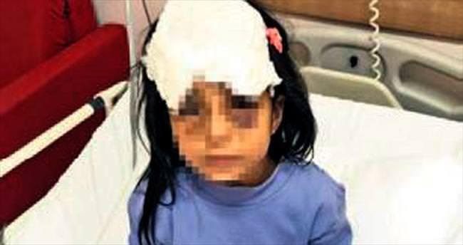 Küçük kızı üvey annesi dövmüş