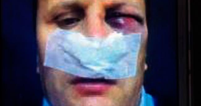 İhbara gelen polisin burnunu kırdılar