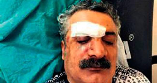 HDP'yi eleştirince öldüresiye dövdüler