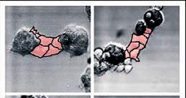 Kanser tümörü vücutta böyle büyüyor