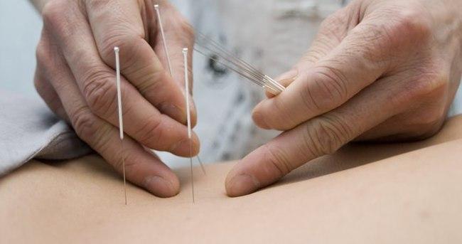 Akupunktur gebelik şansını artırıyor mu?
