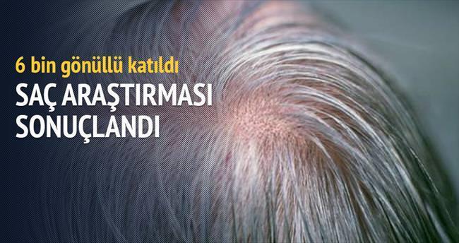 Saç ağartan gen bulundu