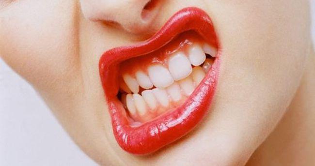 Diş gıcırdatma deyip geçmeyin!