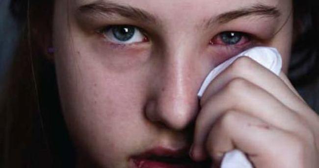 Gözdeki alerjiyi ciddiye alın!