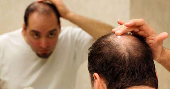Bilinçsiz yapılan diyet saçları döküyor