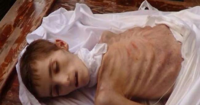 Katil esed kuşatması altındaki Deraya'da açlıktan ölümler başlayacak!