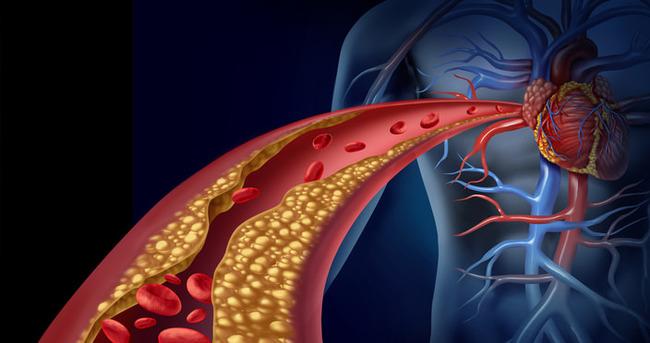 Yüksel kolesterole doğal çözüm