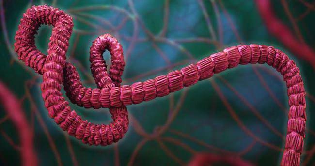 Ebola nedir? Neden olur?