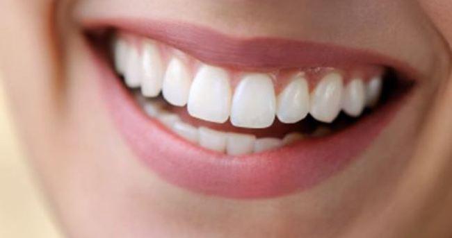 Güldüğünüzde diş etiniz görünüyorsa dikkat