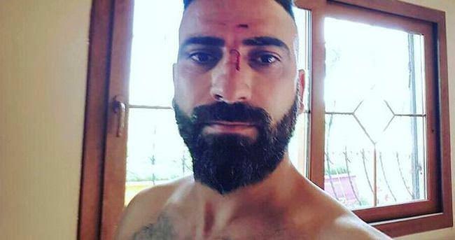 8 kişiyi dövdü, vicdana gelip ziyaret etti