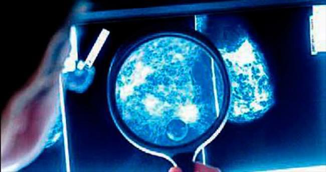 Göğüs kanserinde 93 genetik mutasyon var