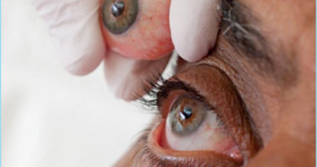 Protez Göz Nedir?