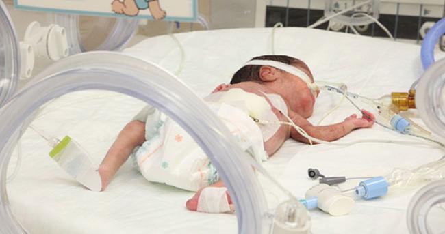 TÜİK: Türkiye'de bebek ölüm hızı azaldı