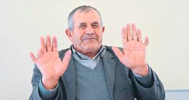 24 parmaklı adam ilgi odağı oluyor