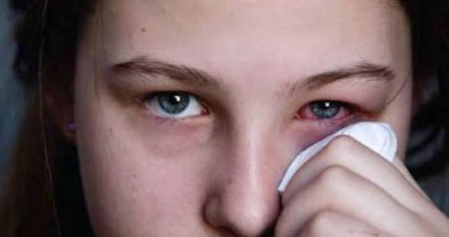 Behçet hastalığı nedir & belirtileri nelerdir?