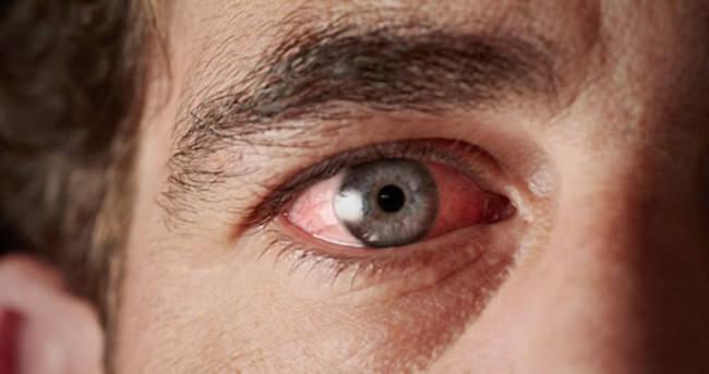 Gözde oluşan kırmızılığa dikkat!