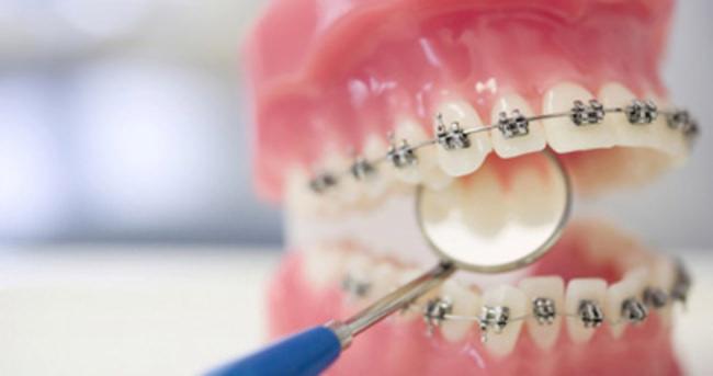 Diş telleriyle tedavi süresi hakkında tüm bildiklerinizi unutun!