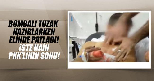 Elinde patlayıcı infilak eden PKK'lı terörist öldü