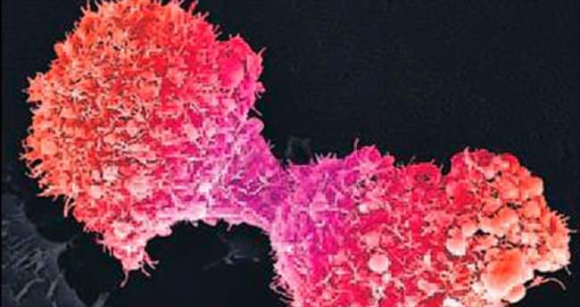 Stres kanserin hızla yayılmasını sağlıyor