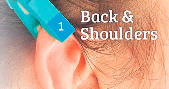 Baş ağrısına karşı mandal tedavisi
