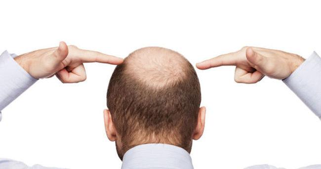 Kavurucu sıcaklarda saç ekimi yapılır mı?