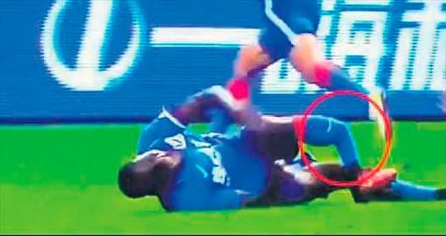 Demba Ba'nın ayağı kırıldı!