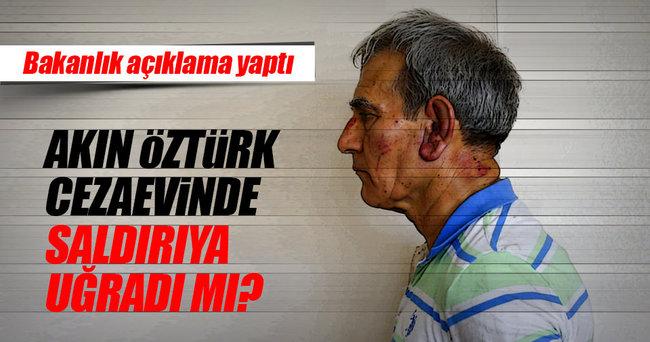 Adalet Bakanlığı'ndan Akın Öztürk'e darp açıklaması!