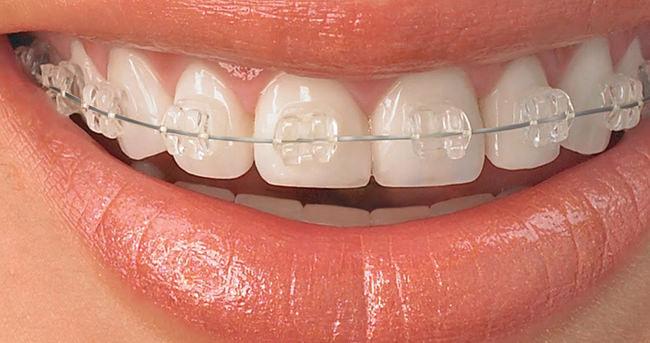 Sadece birkaç ay süren diş teli tedavisi mümkün