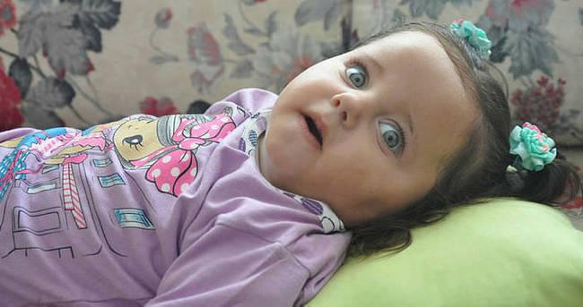 Türkmen bebek Medine yardım bekliyor