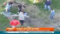 Kosova'da pitbull dehşeti, bu kez çocuğa saldırdı