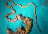 15 yaşındaki kızın midesinden insan boyunda kıl yumağı çıktı