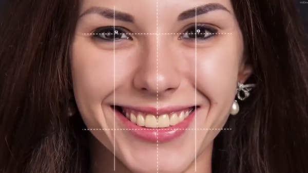Gülüş Tasarımı ve Simülasyon tedavisi nasıl yapılır ?
